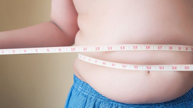 Myths and Realities of Bariatric Surgery